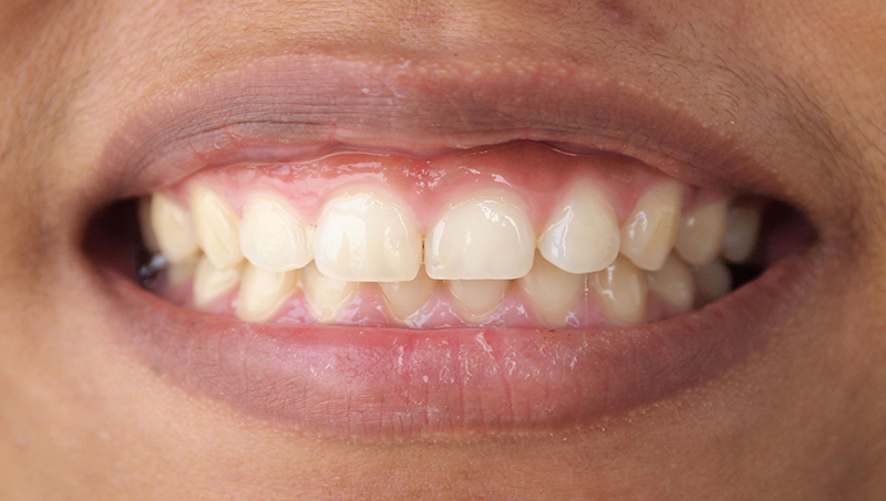 Shrinking Gums Treatment