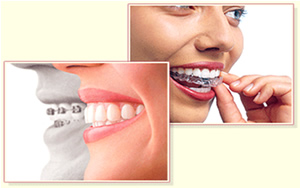 ORTHODONTIC TREATMENT1