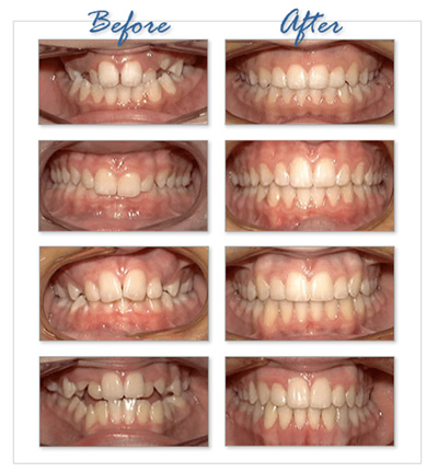ORTHODONTIC TREATMENT3